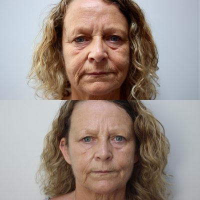 Pyramid Facelift - Skin Tightening 3