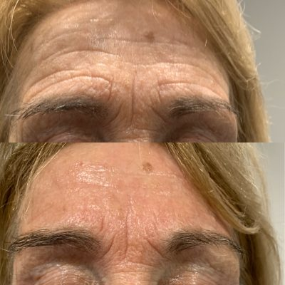Pyramid Facelift - Skin Tightening 2