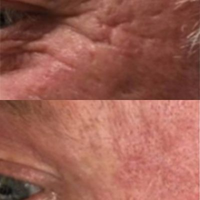 Acne-scarring-2