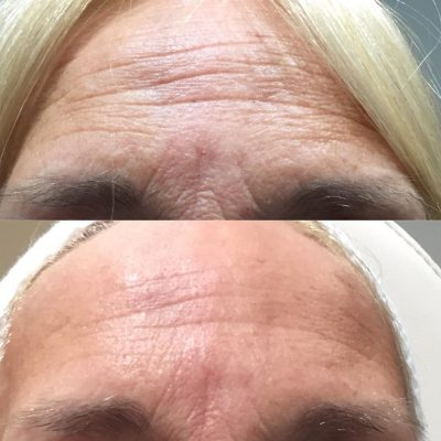 Pyramid Facelist - Skin Tightening 3