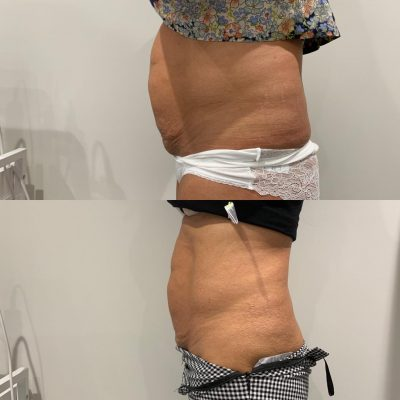 Tummy Tuck - Lipofim 2