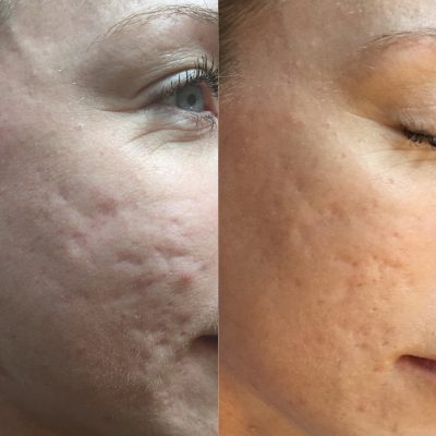 Acne Scarring 3